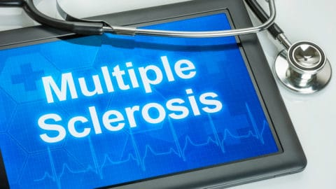 delayed onset multiple sclerosis